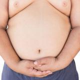Obesità ed apparato endocrino: il micropene.